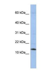 NBP1-57174 - snRNP-D2  / Sm-D2