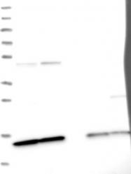 NBP1-87028 - snRNP-D2  / Sm-D2