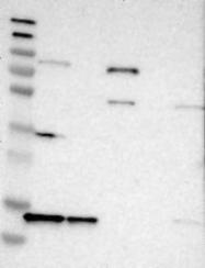 NBP1-80735 - snRNP-D3 / Sm-D3