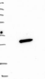 NBP1-86456 - Sorting nexin-10 (SNX10)