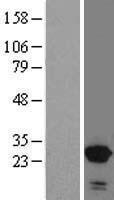 NBL1-16301 - SNX10 Lysate