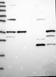 NBP1-85825 - Sorting nexin-11 (SNX11)