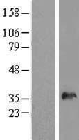NBL1-16302 - SNX11 Lysate