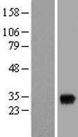 NBL1-16303 - SNX11 Lysate