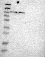 NBP1-80838 - Sorting nexin-14 (SNX14)