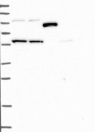 NBP1-92417 - Sorting nexin-17 (SNX17)