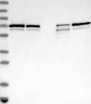 NBP1-89485 - Sorting nexin-2 (SNX2)