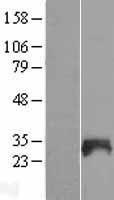 NBL1-16311 - SNX21 Lysate