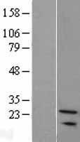 NBL1-16312 - SNX24 Lysate
