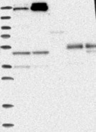 NBP1-92420 - Sorting nexin-26 (SNX26)