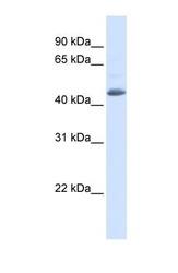 NBP1-58340 - Sorting nexin-5 (SNX5)