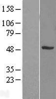 NBL1-16318 - SNX5 Lysate