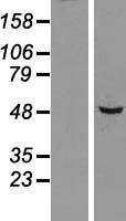 NBL1-16319 - SNX5 Lysate