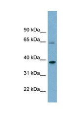 NBP1-58862 - Sorting nexin-7 (SNX7)