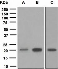 NBP1-95516 - SOCS2 / CIS2