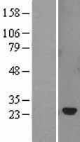 NBL1-16326 - SOCS2 Lysate
