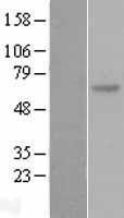 NBL1-16329 - SOCS5 Lysate