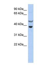 NBP1-58902 - SOCS7 / NAP4