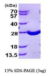 NBP1-41138 - Superoxide dismutase 2 / SOD2