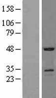 NBL1-16342 - SOSTDC1 Lysate