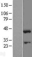 NBL1-16343 - SOX1 Lysate
