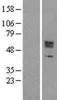 NBL1-16345 - SOX11 Lysate