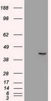 NBP1-47996 - SOX17