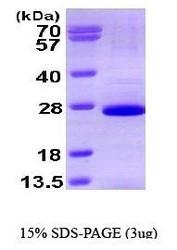 NBP1-41144 - SOX2
