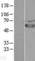 NBL1-16352 - SOX4 Lysate