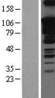 NBL1-16353 - SOX5 Lysate