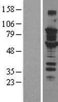 NBL1-16354 - SOX6 Lysate