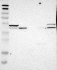 NBP1-86116 - SOX7
