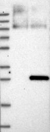 NBP1-85409 - Sperm protein 17 (SP17)