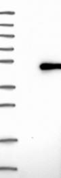 NBP1-80923 - SPAG6 / PF16