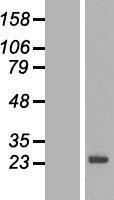 NBL1-16371 - SPANX-N3 Lysate