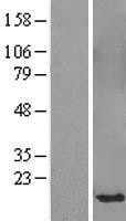 NBL1-16370 - SPANXB1 Lysate