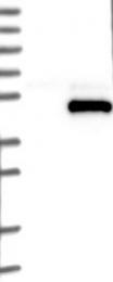NBP1-80971 - SPARC / Osteonectin