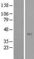 NBL1-16376 - SPATA17 Lysate