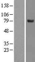 NBL1-16379 - SPATA20 Lysate