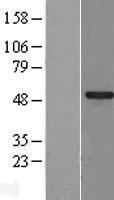 NBL1-16381 - SPATA2L Lysate