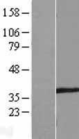 NBL1-16382 - SPATA4 Lysate