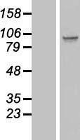 NBL1-16383 - SPATA5L1 Lysate