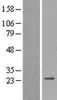 NBL1-16386 - SPC24 Lysate