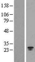 NBL1-16387 - SPC25 Lysate