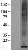 NBL1-16388 - SPCS1 Lysate