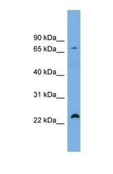 NBP1-55345 - Spartin / SPG20