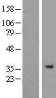 NBL1-16395 - SPG21 Lysate