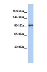 NBP1-70711 - CCDC52