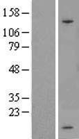 NBL1-16405 - SPINK1 Lysate