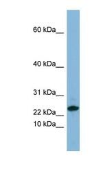 NBP1-57679 - SPRR3 / Cornifin beta